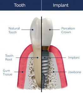 Missing Teeth - Southside Dental Implants