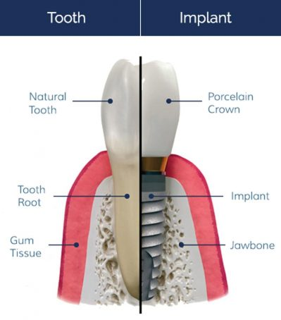 Dental Implants - Southside Dental Implants
