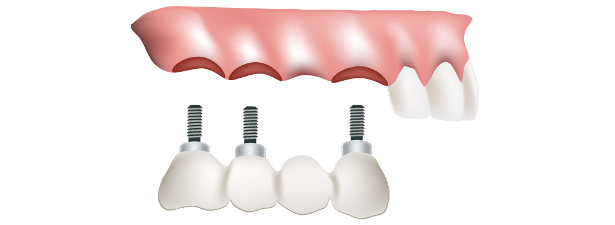 Implant-supported bridges at Southside Dental Implants