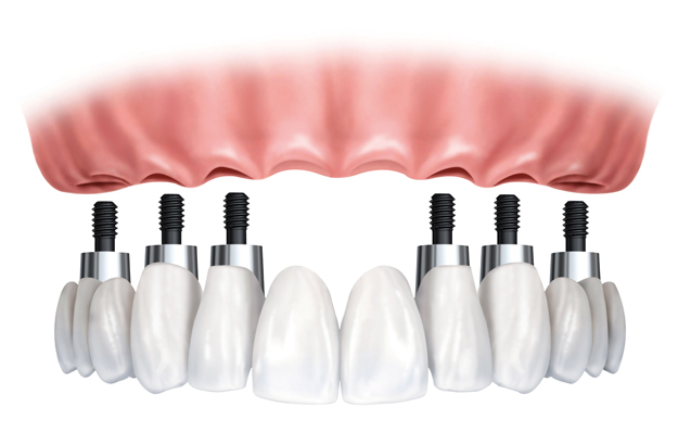 Full-arch restoration at Southside Dental Implants