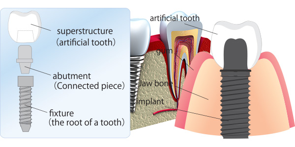 single-tooth-replacement