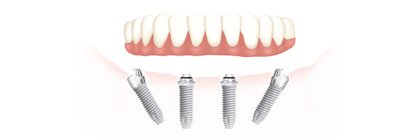 all-on-4-dental-implants-brisbane