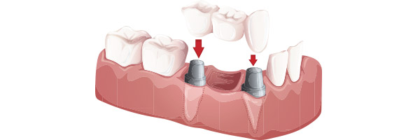 multiple-dental-implants