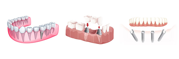 types-of-dental-implants-brisbane