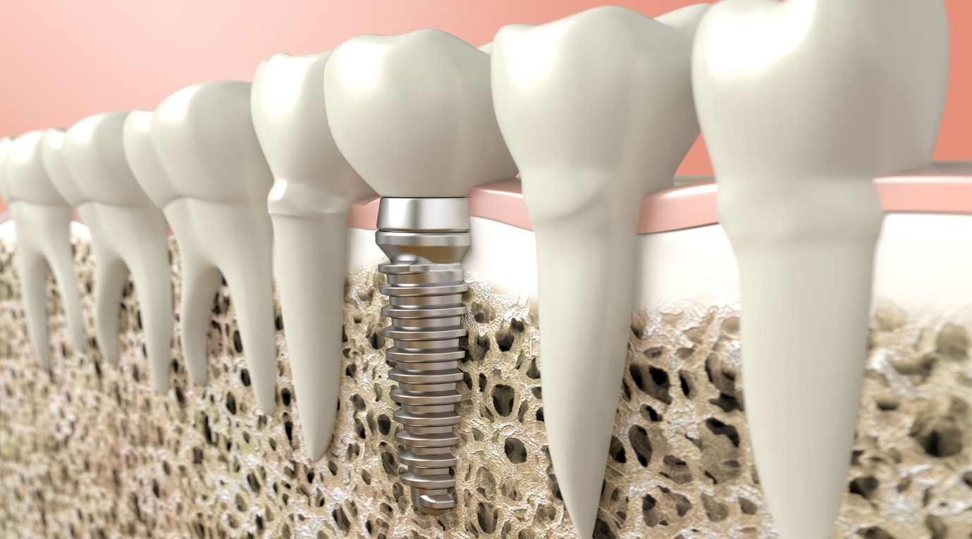 teeth implants Brisbane