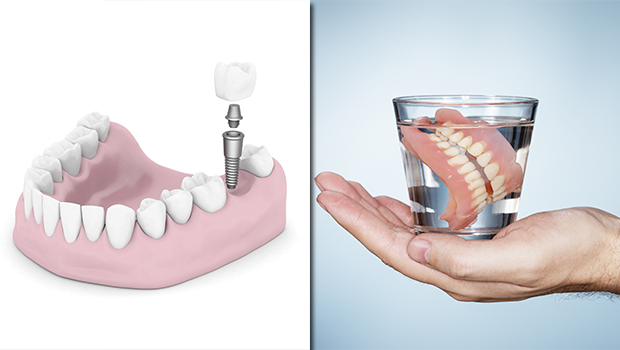 banner-Dental-Implant-versus-Traditional-Dentures
