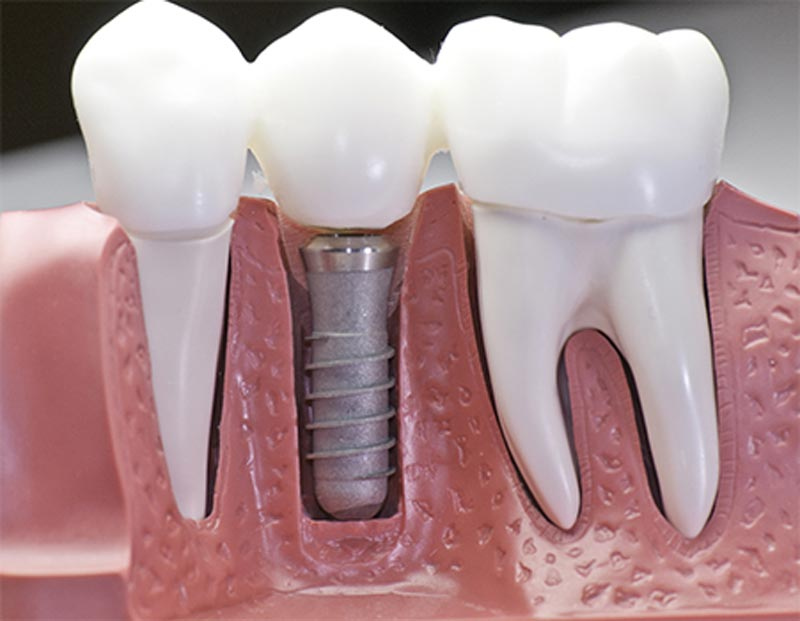 image-Loose-Dental-Implants