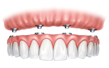 Implant-Supported Dentures - Southside Dental Implants