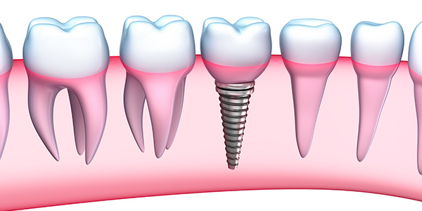 Should I go overseas for dental implants? Dr Burhaan Kassim