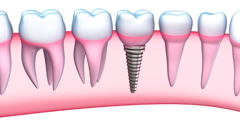 Dental Implants Are Better For Your Oral Health - Southside Dental Implants
