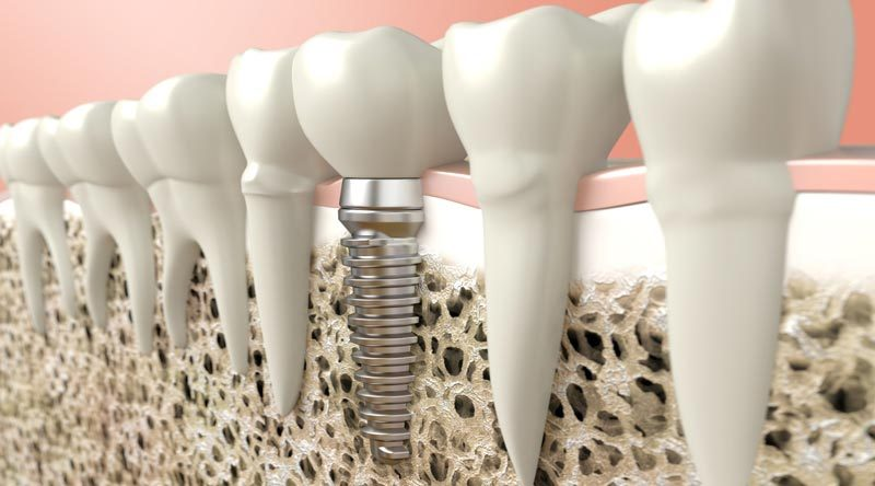 Bone Graft For Teeth Implants - Southside Dental Implants