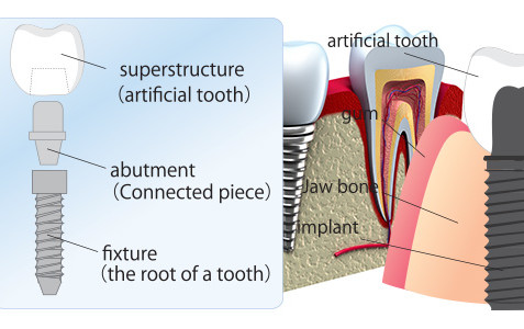 Single Tooth Replacement - Southside Dental Implants